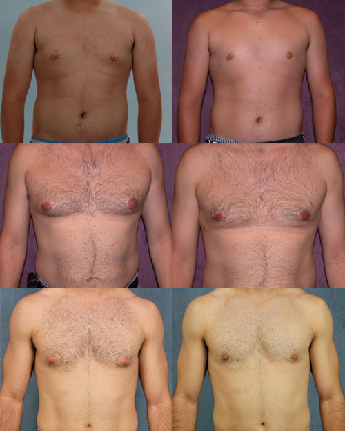 male breast reduction before and afters