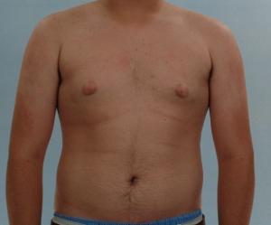 Breast reduction houston